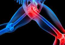 Боли в суставах — причины
