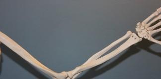 Артроз коленного сустава: симптомы
